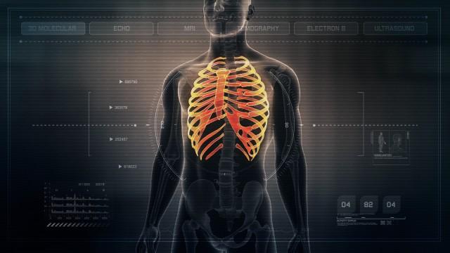 Anatomy of Human Male Rib Cage on Futuristic Medical Interface dashboard. Seamless Loop. Animation.