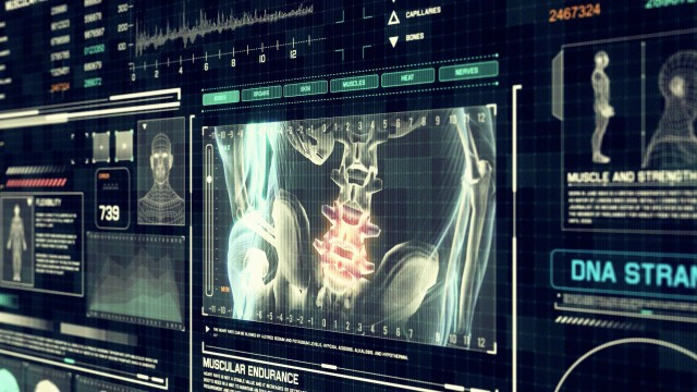 Human Spine Pain Scan Perspective